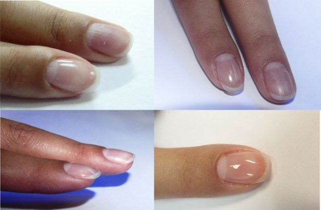 технология укрепления ногтей биогелем